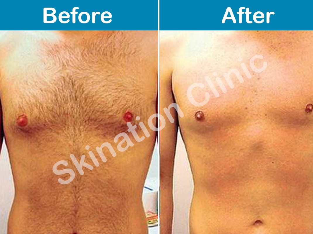 laser-hair-reduction-in-delhi